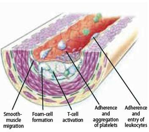 Atherosclerosis - Textbook of Cardiology